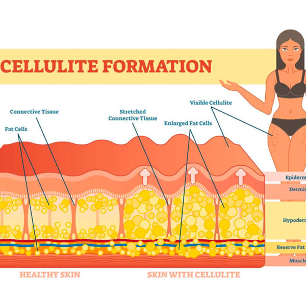 Cellulite: cos'è e come si forma