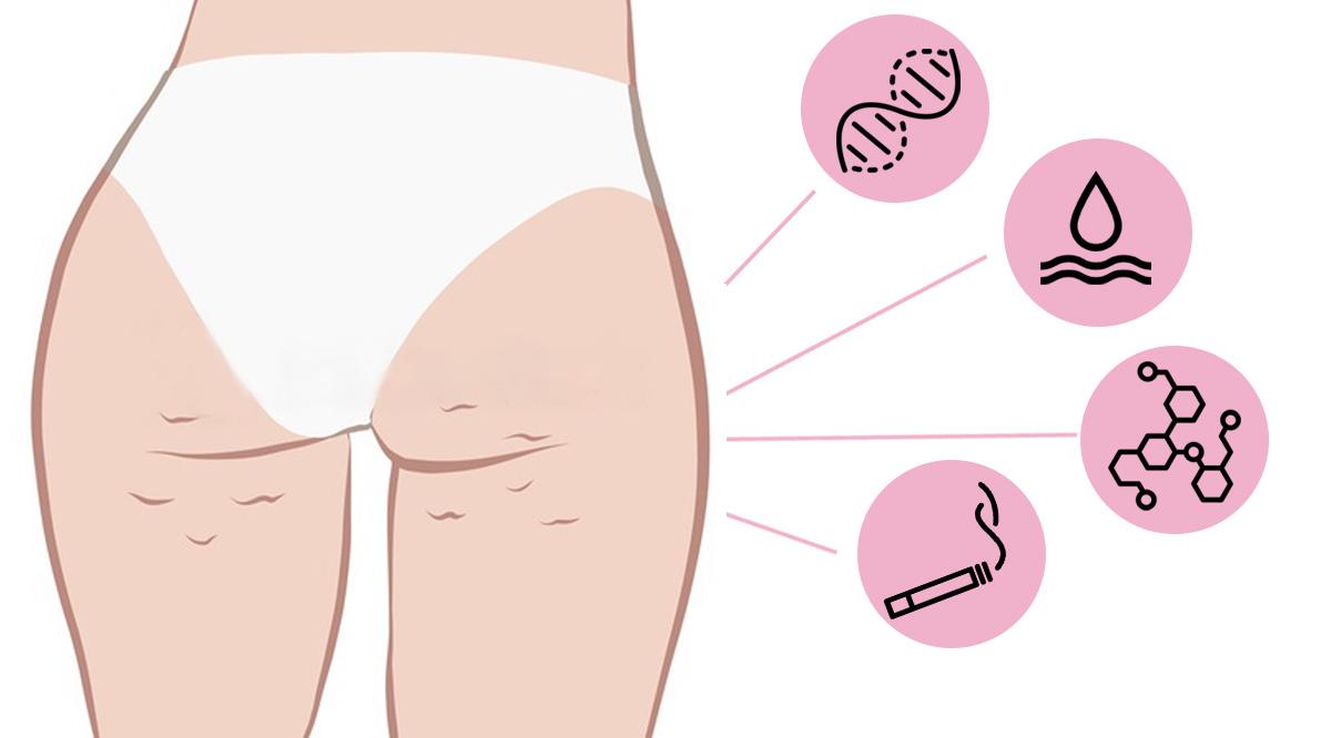 I fattori che predispongono alla cellulite